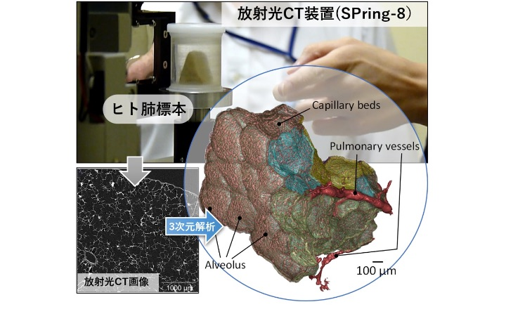 放射光が解き明かす肺のミクロ構造「放射光CTによる肺のミクロ成長と病態の解明」