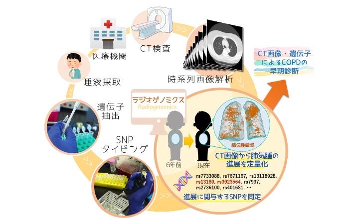時空間ビッグデータと遺伝子の融合「COPDの長期経年CT画像・遺伝子による統合診断」