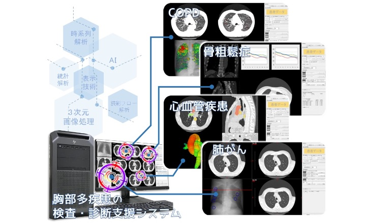 見つける・診るを助ける「胸部多疾患の検査・診断支援システム」